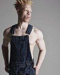 Kisah Inspiratif Pria Albino, Dulu Dibully Kini Eksis di London Fashion Week