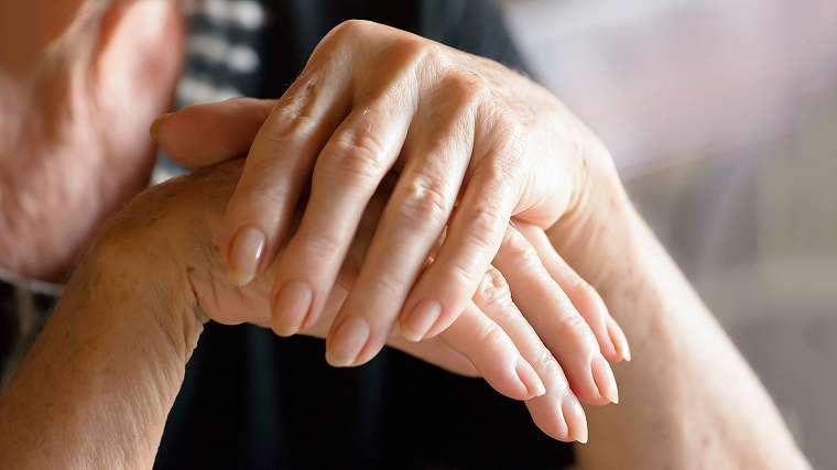 Hasil gambar untuk psoriatic arthritis