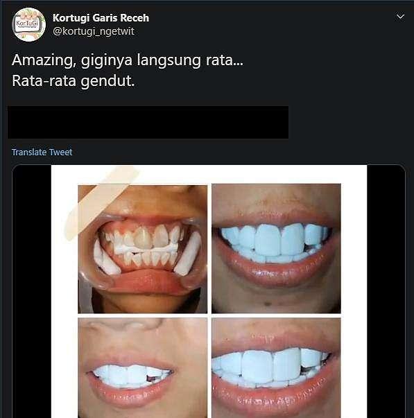 Gigi putih hasil veneer. (twitter/kortugi_ngetwit)