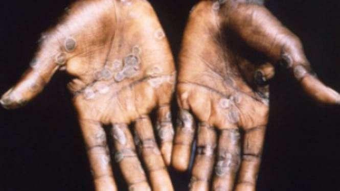 Ilustrasi manusia terinfeksi cacar monyet