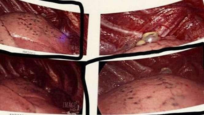 Paru-paru yang hancur akibat vaping