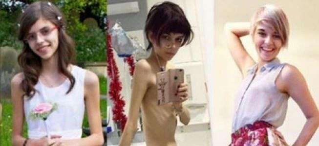 Perempuan dengan Anoreksia Berat Bagikan Kisah Inspiratifnya